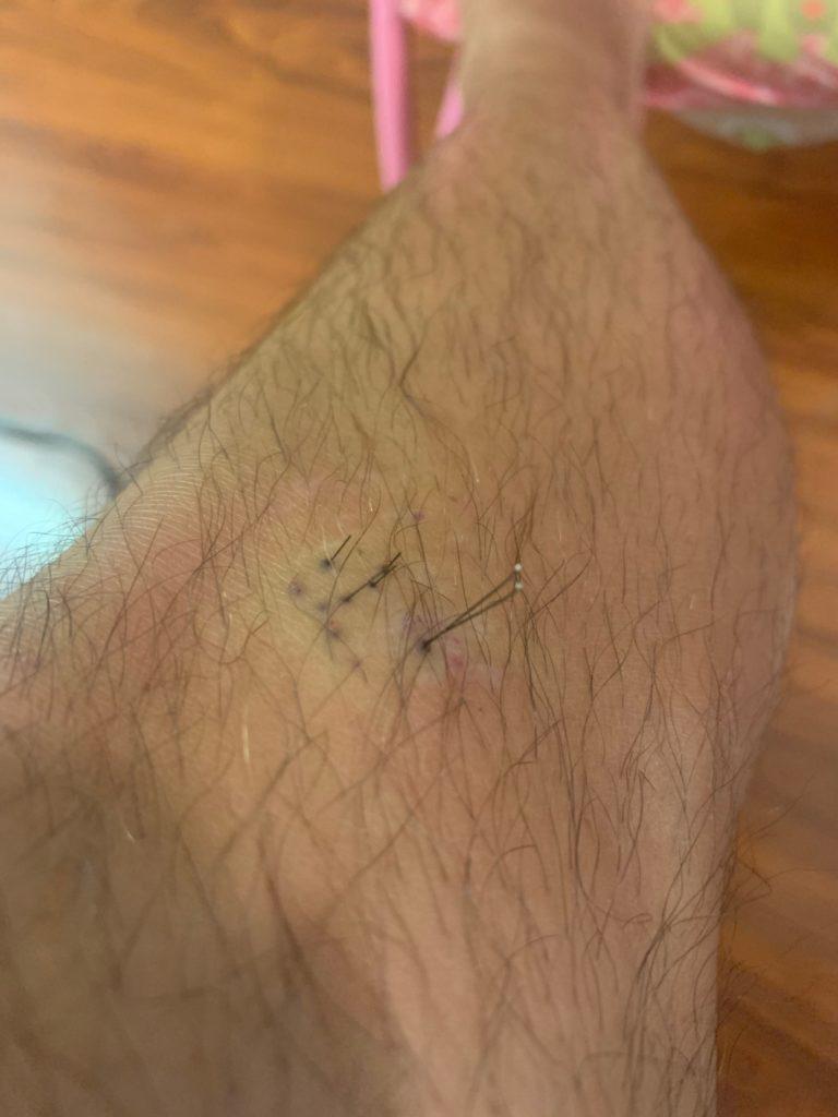 ウニの針が刺さった私の足