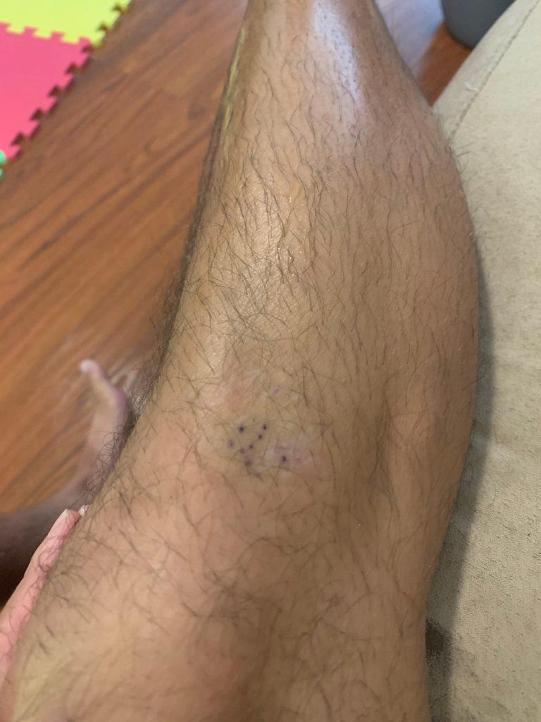ウニの針が刺さった私の足 針が埋没している
